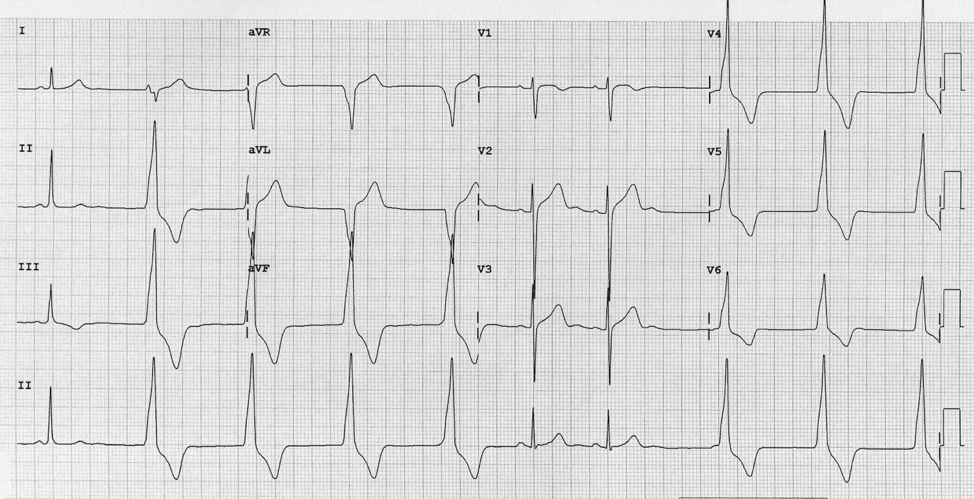 Figure 2: Accelerated idioventricular rhythm.