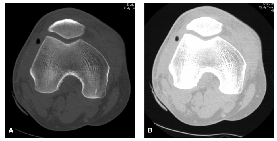 Figure 4: Intra-articular air visualized on CT scan on bone and lung windows (A and B respectively), from Konda, et al, 2014[1].