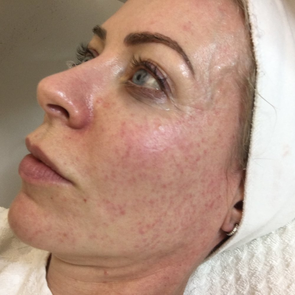 After mesotherapy - yes, my skin does look a bit stung up...