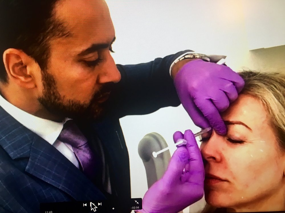 Having Botox shots between the eyebrows with Dr Tapan Patel