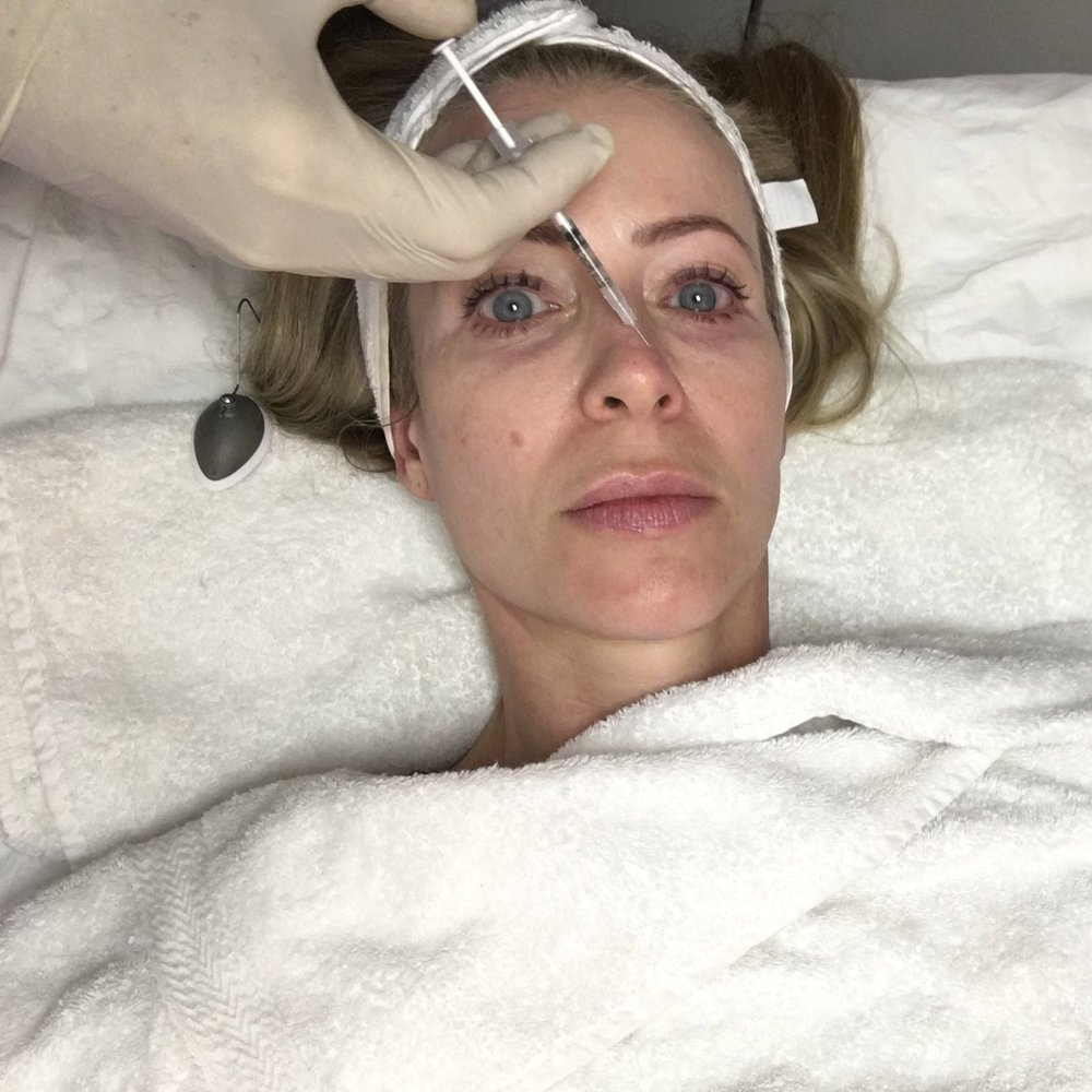 AHD botox in pores.jpg