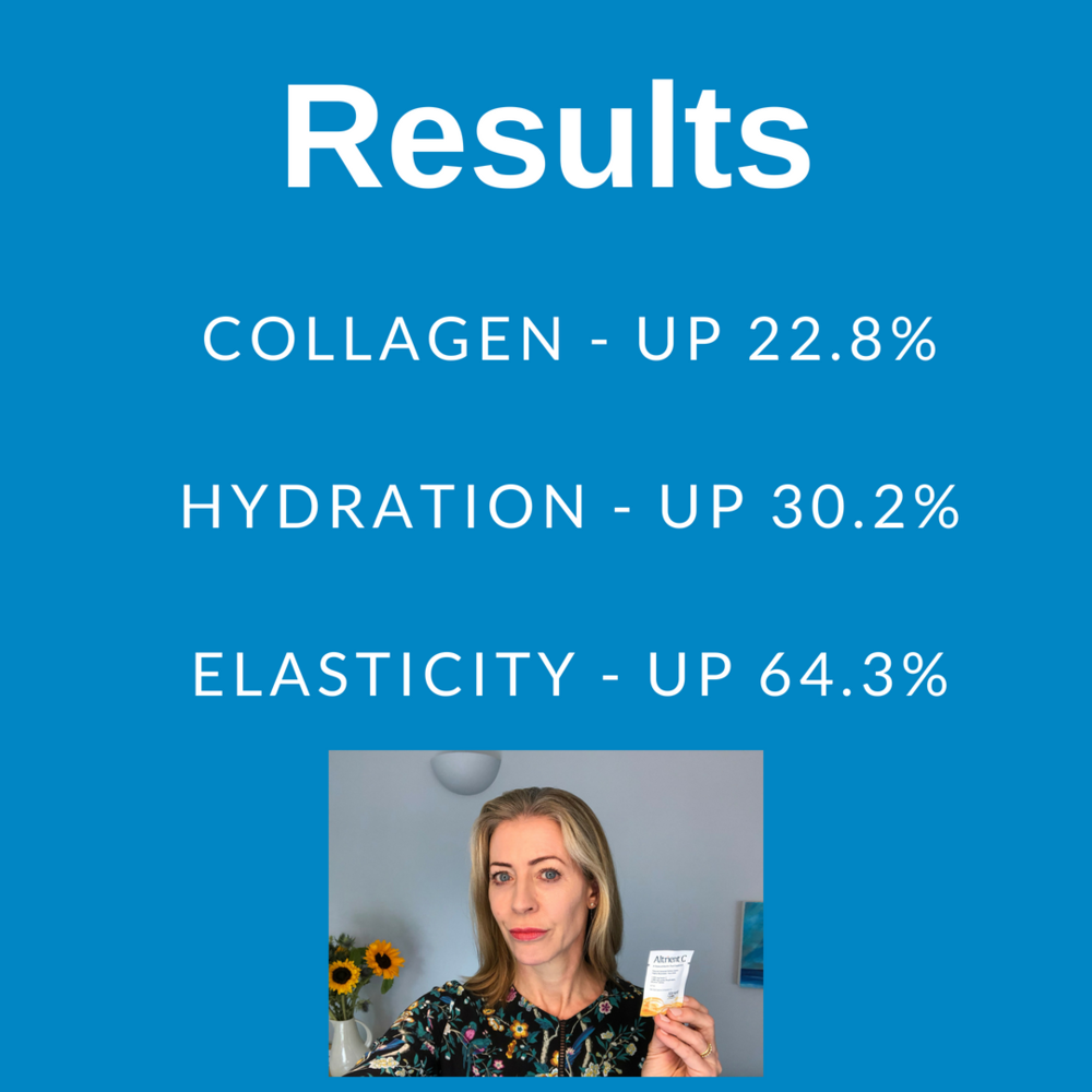 Results altrient.png
