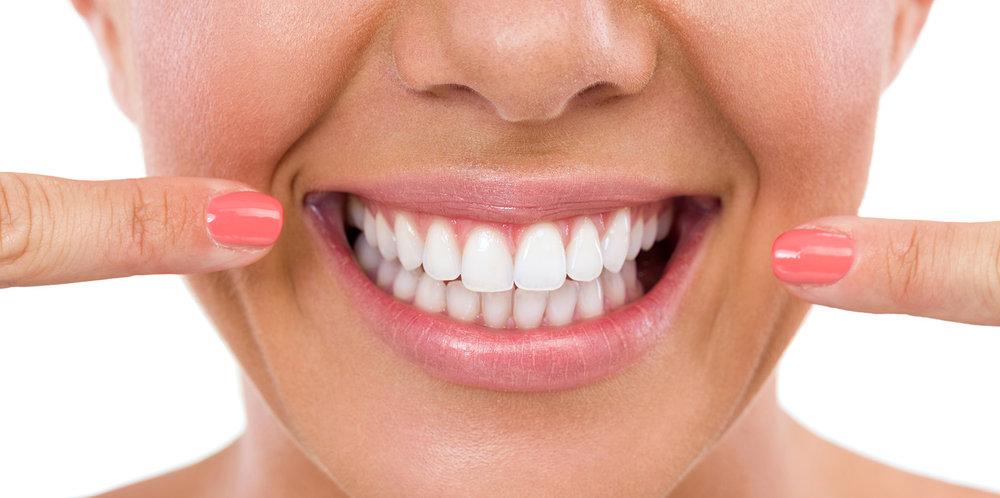 tandblekning_OC.jpg