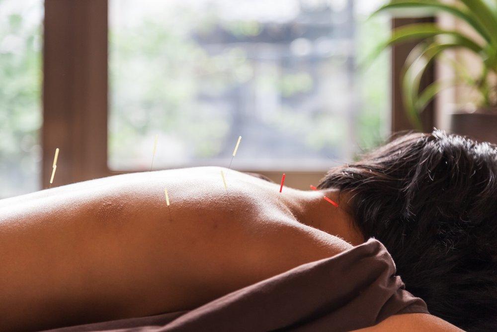 Acupuncture Toronto | ACUSOUL