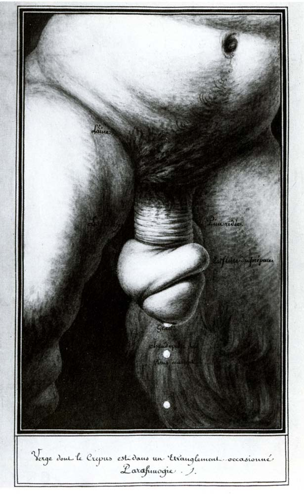 Penis strangled by retracted foreskin (Paraphimosis)