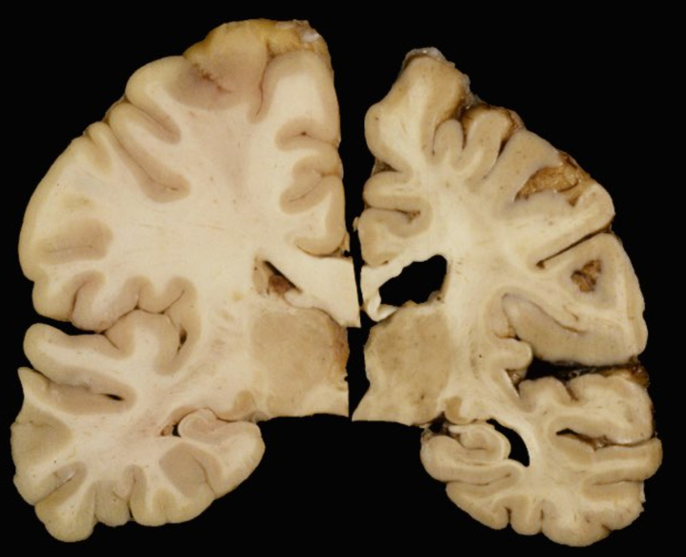 On the left, a brain tissue sample from a healthy, 34-year old. On the right, a sample from a 45-year old with HD.  Images provided by Jean Paul Vonsattel, MD