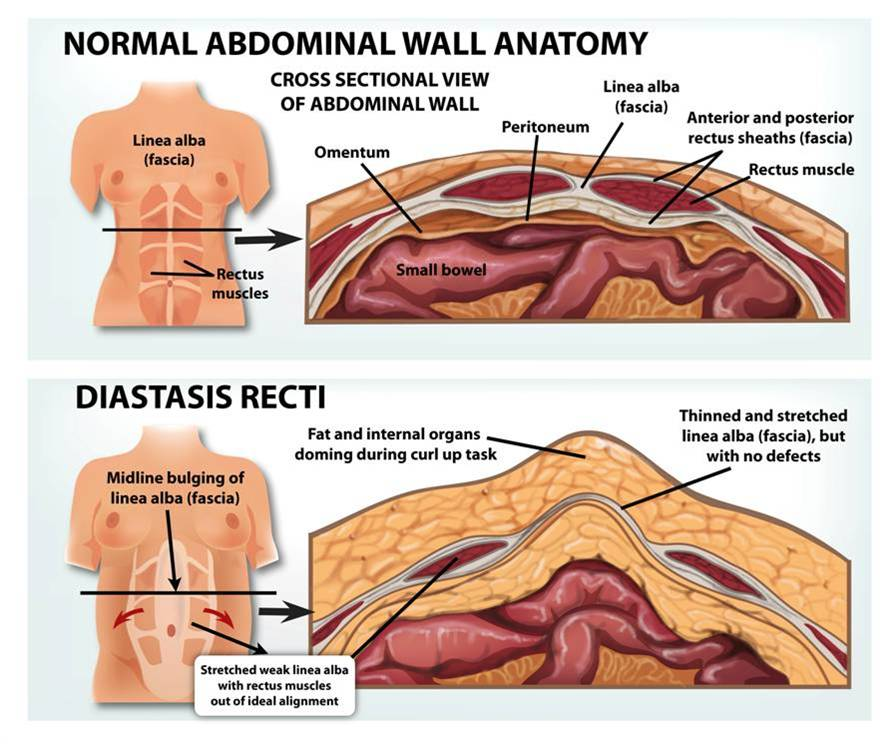 Diastasis Recti: What is it and how to do progress back to lifting ...