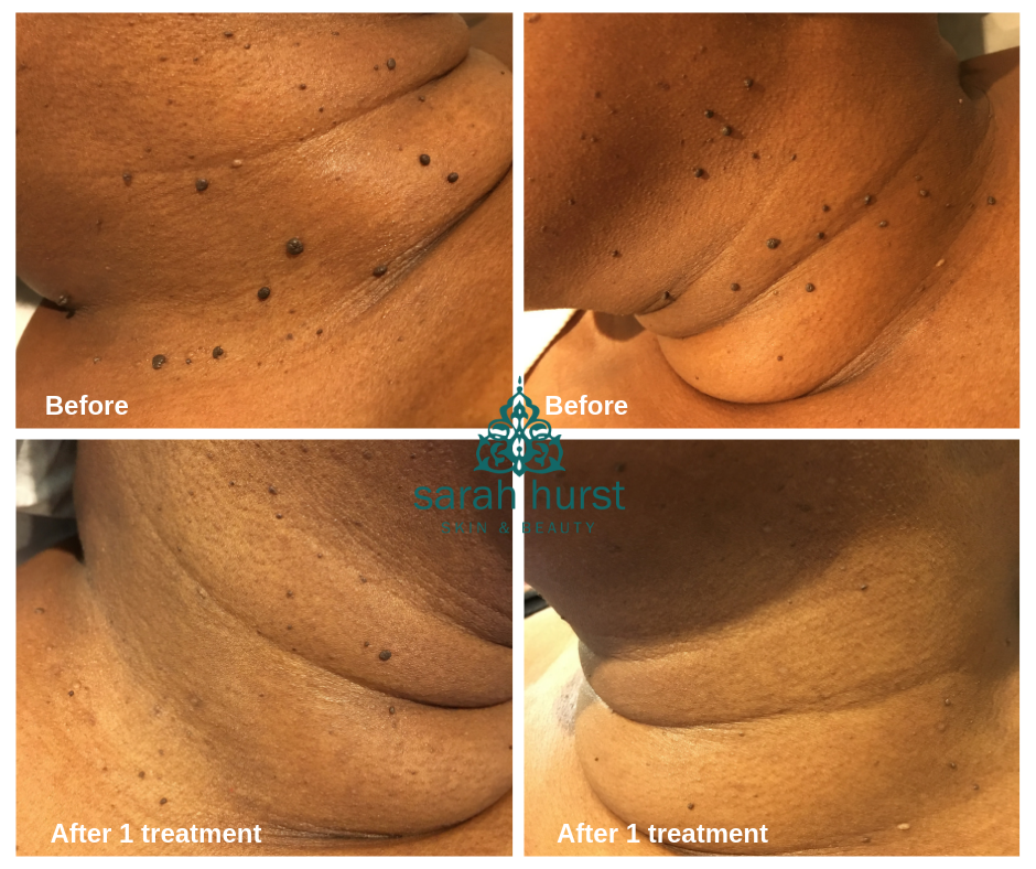 Skin tag removal with advanced electrolysis on dark skin