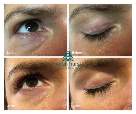 this client had 5 x 15 mins treatments to achieve these results at monthly intervals