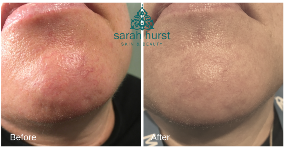 before and after 2 thread vein removal treatment on chin copy.png