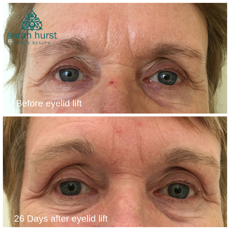 Before and after eye lid lift and frown lines (glabella) with plasma pen.png