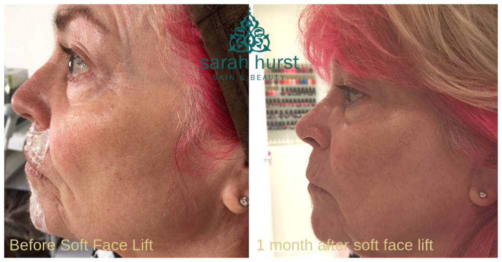 Before and after 1 month post soft face lift plasma pen.png