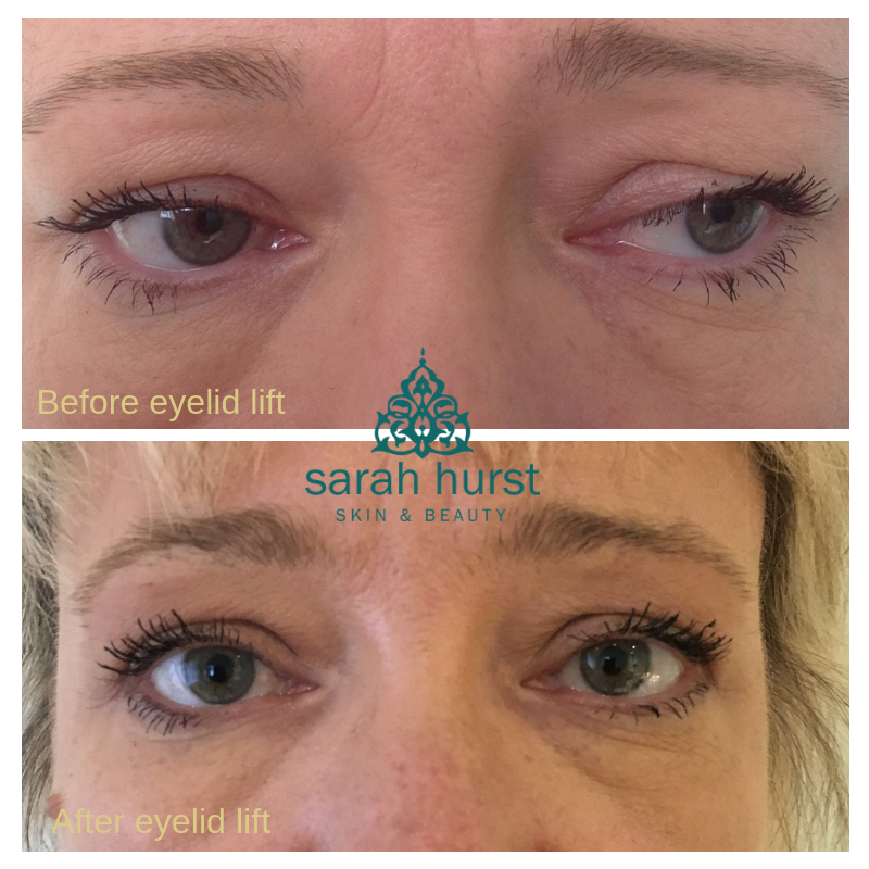 Before and after accor plasma pen eyelid lift.png