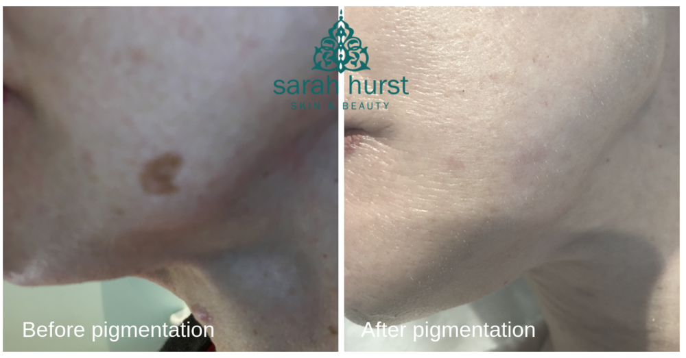 before and after 1 treatment on pigmentation with plasma pen copy.png
