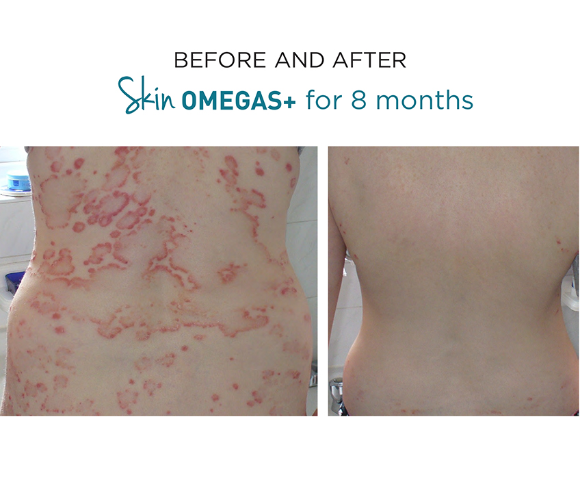 Omegas before and after.jpg