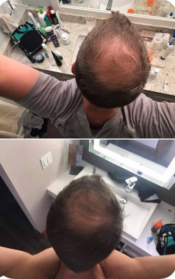 Look at the results - just 5 weeks!