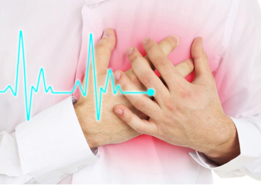 Recomendaciones tras un infarto (SCA)