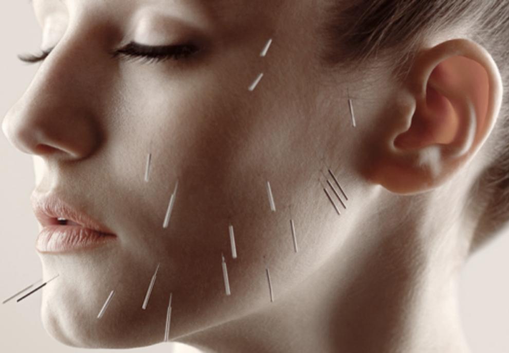 facialaccupunctureessex