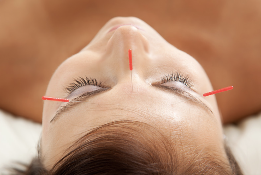 facial rejuvenation essex