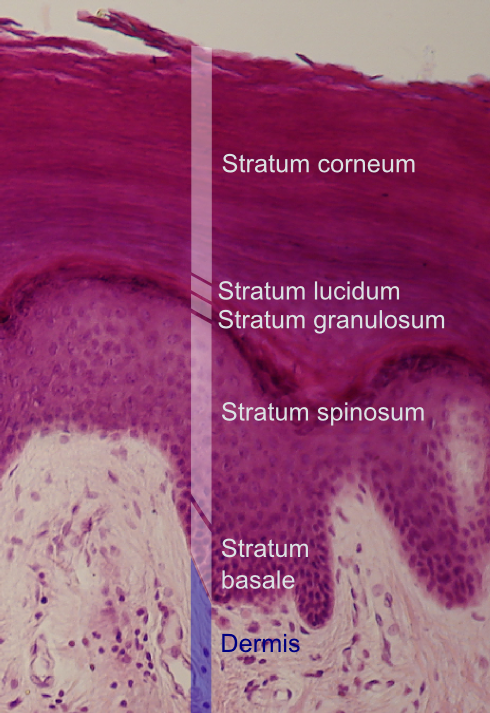Figure 1. Layers of the epidermis (2)
