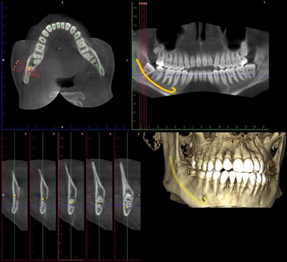 CBCT-3rd-molar-1.jpg