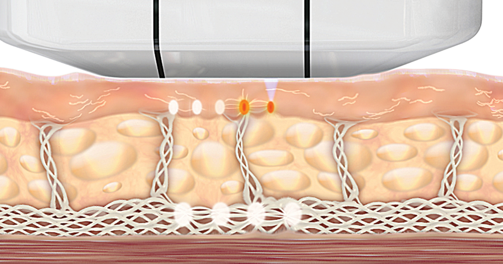 Ästhetische Gesichtsbehandlung | Hautstraffung mit Ultraschall | Ultherapy®
