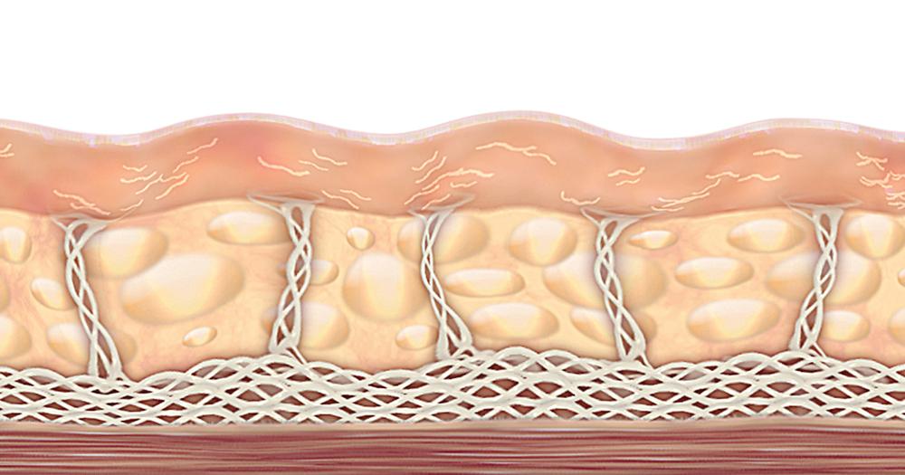 Hautalterung und Faltenbildung