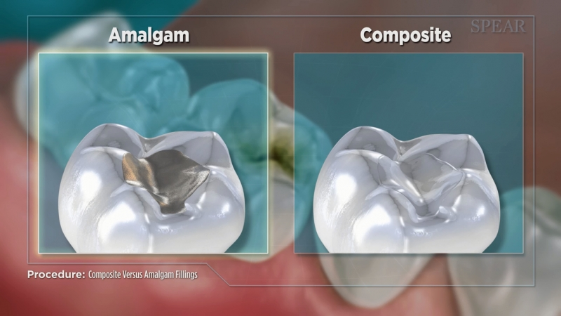 Amalgam vs. Composite