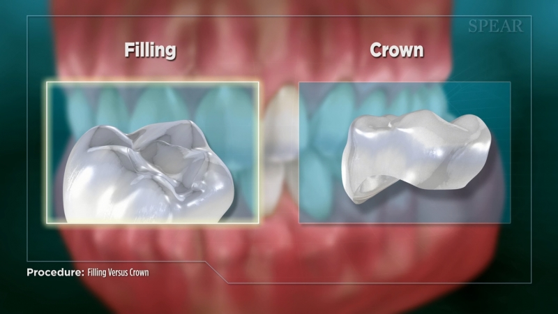 Filling vs. Crown