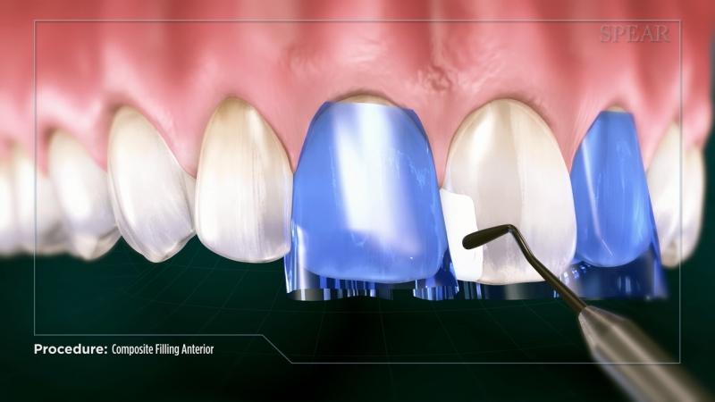 Front Teeth
