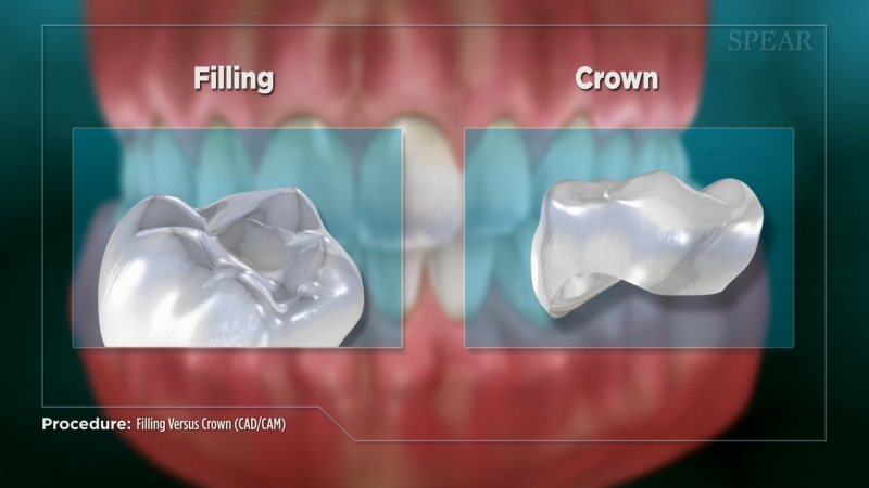 Crown vs. Filling