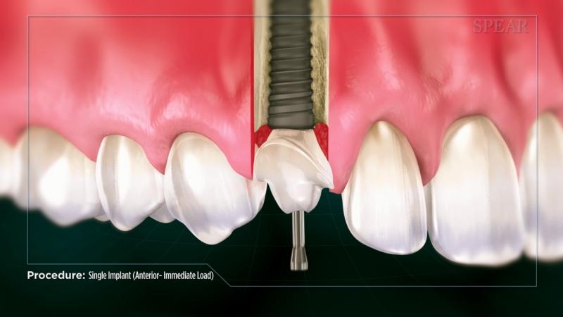 Immediate Crown Implant