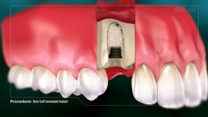 Graft Around Implant