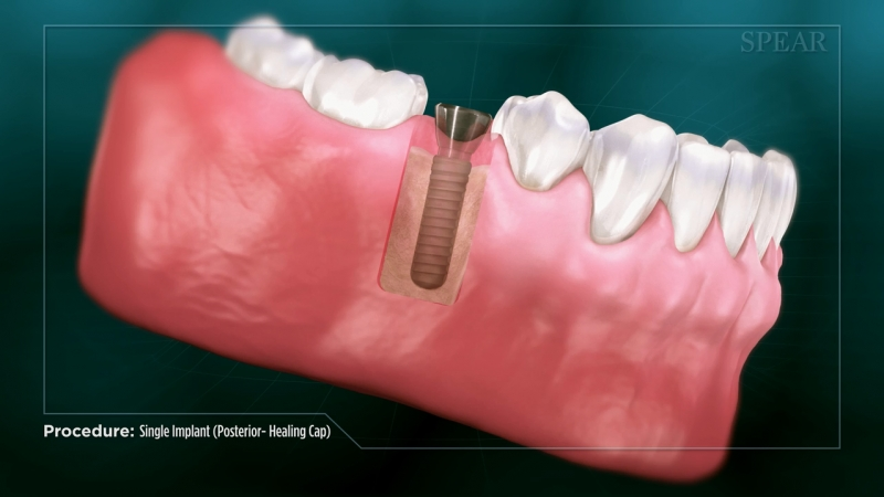 Single Implant (posterior)