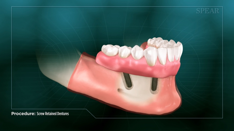 Denture (screwed in)