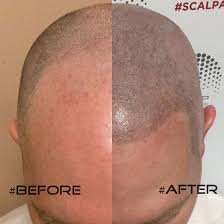 Help reduce the appearance of balding with Scalpa micropigmentation treatments at EGA Salon and Spa