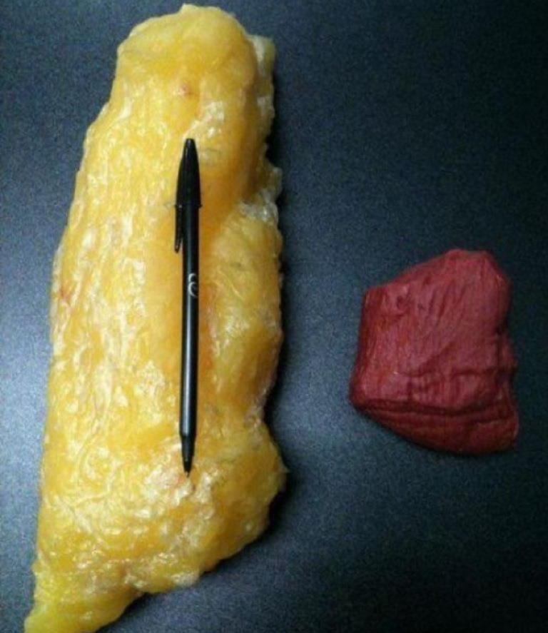 Five pounds of Fat versus 5 pounds of muscle ( I don't own this image )