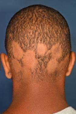 alopecia areata.jpg