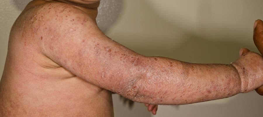 atopic dermatitis/eczema.jpg
