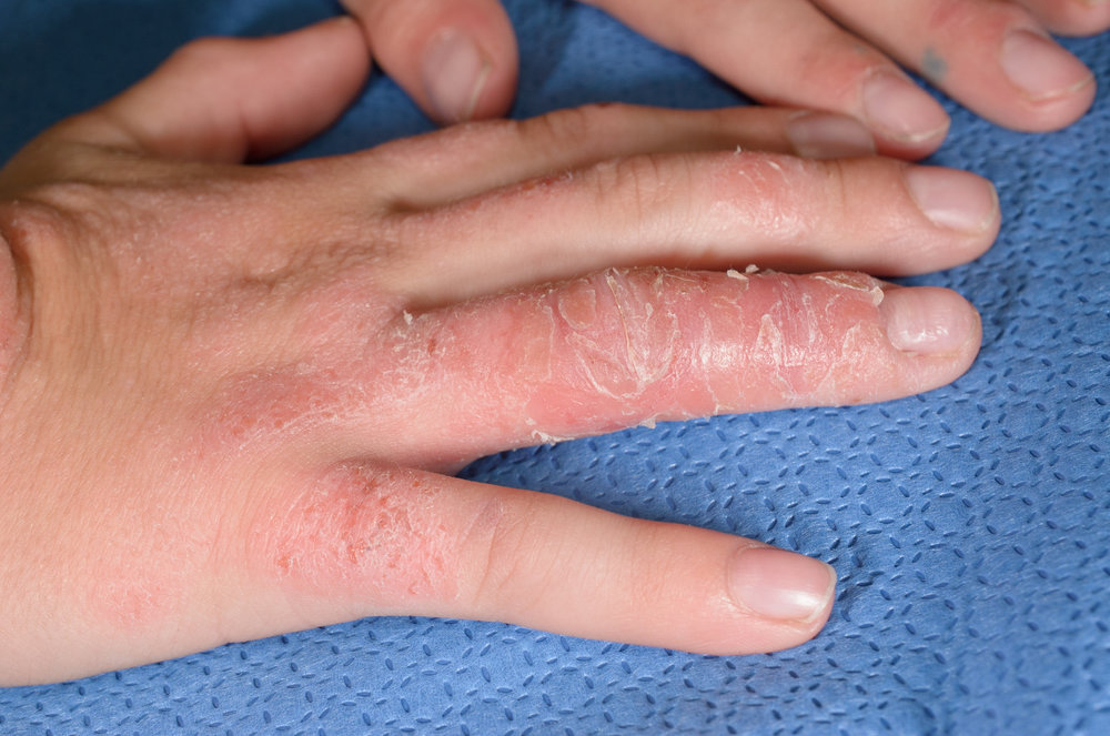 allergic contact dermatitis.jpg