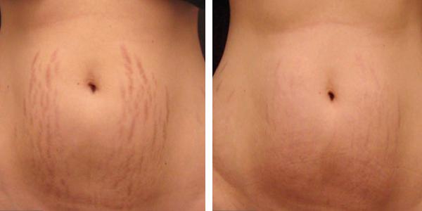 Microneedle-stretch-marks.jpg