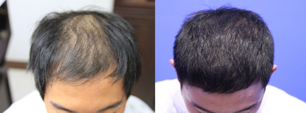 hair transplantation man before after