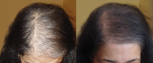 hair transplantation woman before after