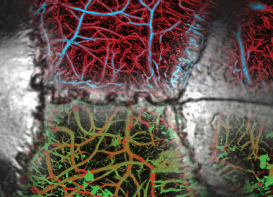 Multi-Scale Functional and Molecular Imaging - We work at the interface of engineering, physics, biology and medicine to devise new in vivo imaging tools that can tackle challenges unapproachable by existing modalities.More >>