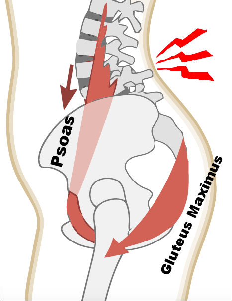 The psoas major and gluteus maximus work together as an agonist/antagonist pair of muscle to balance the pelvis relative to the lower (lumbar) spine. When the psoas is tight and shortened, the gluteus maximus is often weak and lengthened. By strengthening and using the glutes, we can send an inhibitory signal to the psoas to begin to re-establish balance.