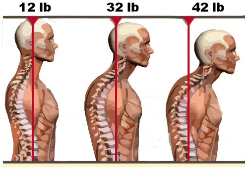 The average human head weighs between 10-12 pounds. Head forward posture greatly increases the amount of strain on the neck as the head moves in front of the body. This leads to poor biomechanics, compensatory patterns, and discomfort during exercise.