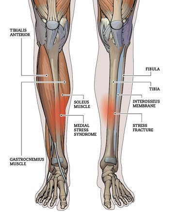 Shin Splints: Medial Tibial Stress Syndrome — Zion Physical Therapy
