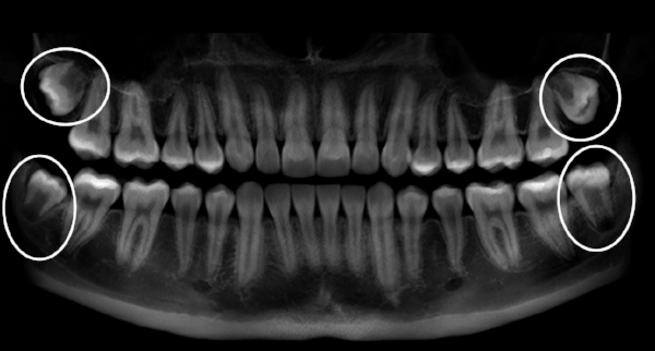 X-Ray of wisdom teeth prior to removal