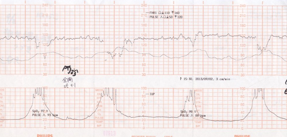 10 Minutes of Fetal heart rate and Maternal heart rate monitoring during the 2nd stage of labor. The lower graph (MHR) line has 4 main peaks that correspond to maternal contractions.