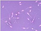 Eosin Nigrosin Stain for Morphology Evaluation